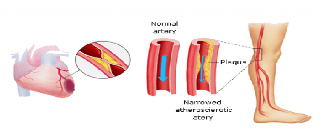 tips-survive-peripheral-artery-disease