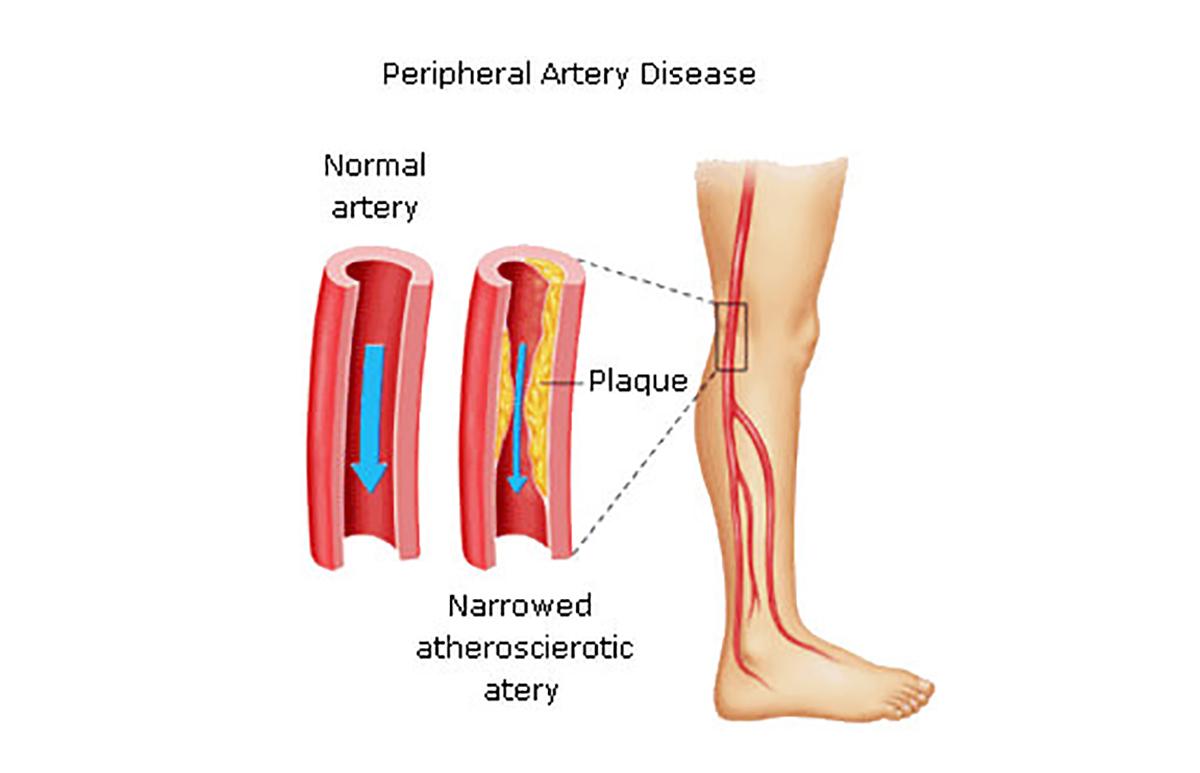 peripheral-arterial-disease-people-diabetes