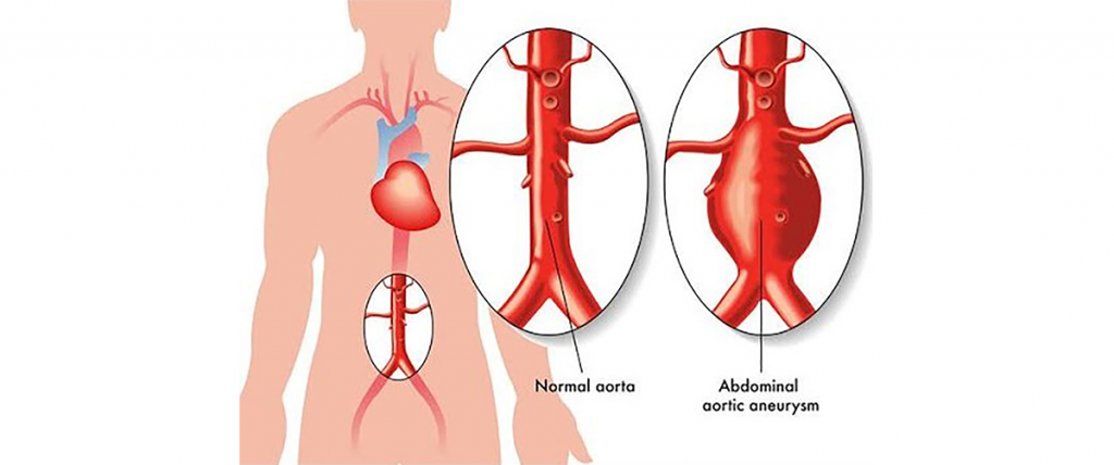 endovascular-repair-abdominal-aortic-aneurysm-safe