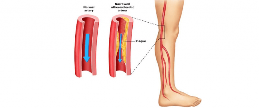 Difference between Peripheral Arterial Disease and Critical Limb Ischemia