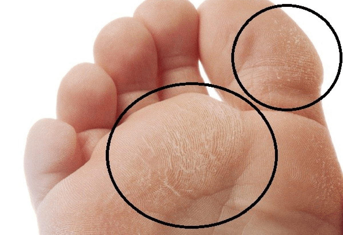 diabetic-foot-infection