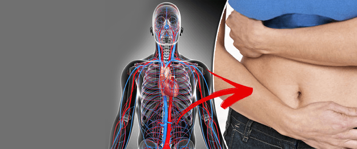 know-causes-risk-associated-abdominal-aortic-aneurysm
