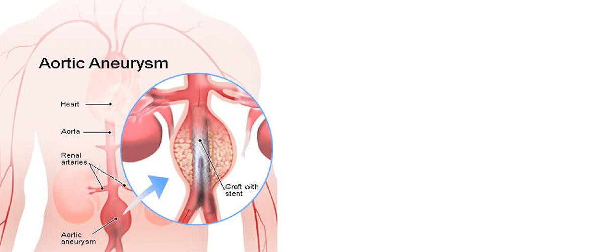 symptoms-help-diagnosis-abdominal-aortic-aneurysm