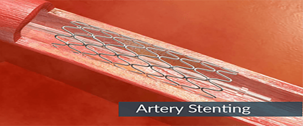 Benefits of Endovascular Repair with a Stent Graft