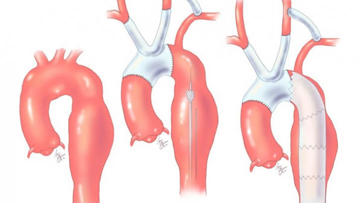 How Aortic Aneurysms Become Aortic Catastrophes