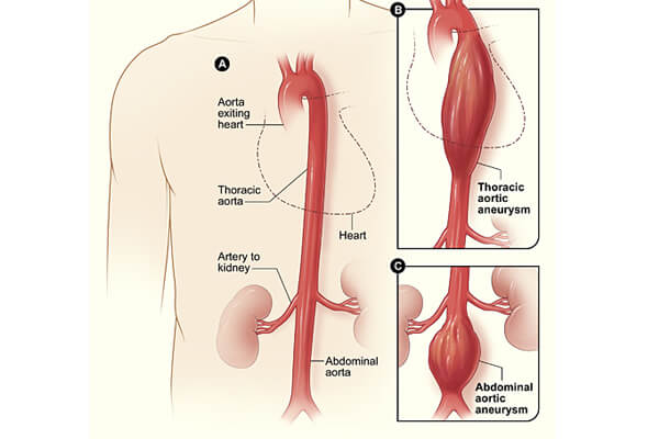Surgeries to Treat Aortic Disease