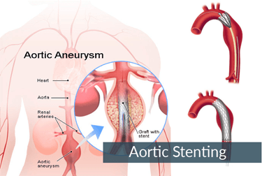 Aortic Aneurysm and Aortic Dissection