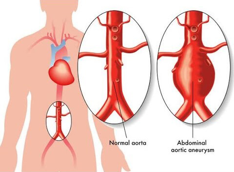 Endovascular Repair of Abdominal Aortic Aneurysm is Safe