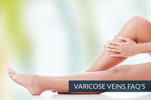 VARICOSE-VEINS-FAQS