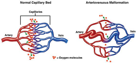 Arterio-Venous Malformation Embolisation of a 65 year old patient and his story