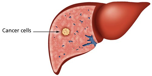 Understand the Causes and Symptoms of Liver Cancer