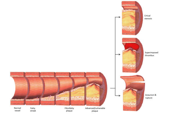 Peripheral Artery Disease of the Legs