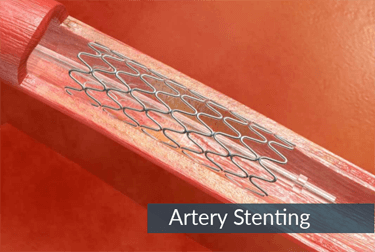 Artery-Stenting