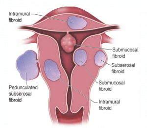 Fibroids-Drawing-300x261