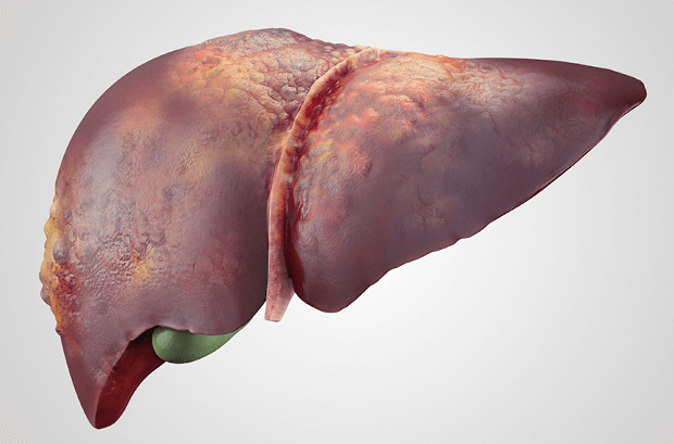 How does Radiofrequency Ablation help in Liver Tumour Treatment?