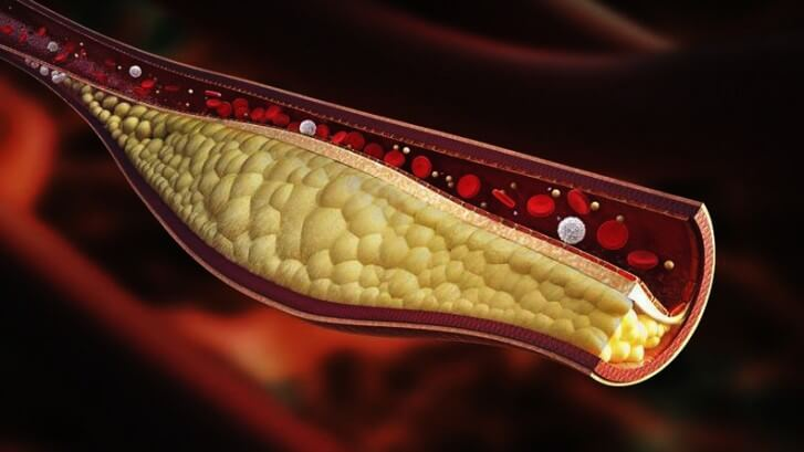 High Cholesterol a Threat to the Entire Vascular System