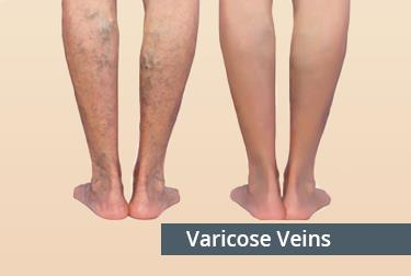 varicocele_treatment