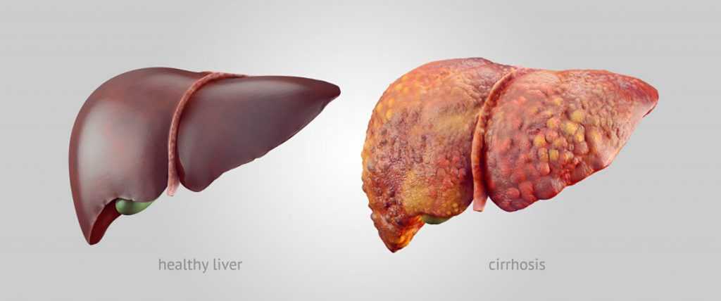 how-when-and-why-does-liver-gets-affected-what-are-its-symptoms
