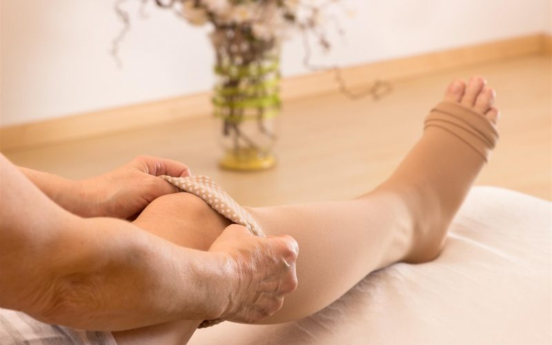Do's  and Don'ts after Varicose Veins Treatment.