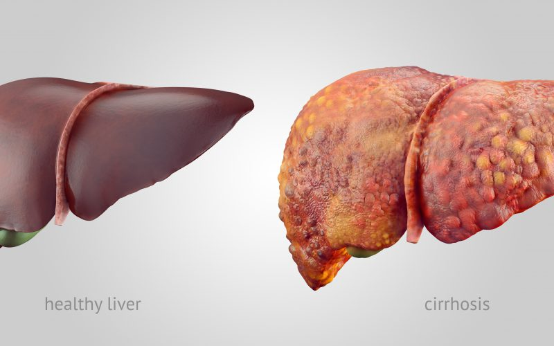 How, When and Why Does Liver Get's Affected? What Are Its Symptoms?