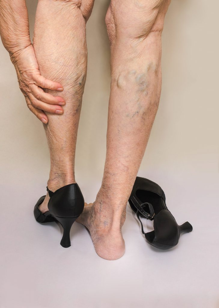 Get To know What's Triggering Varicose Veins