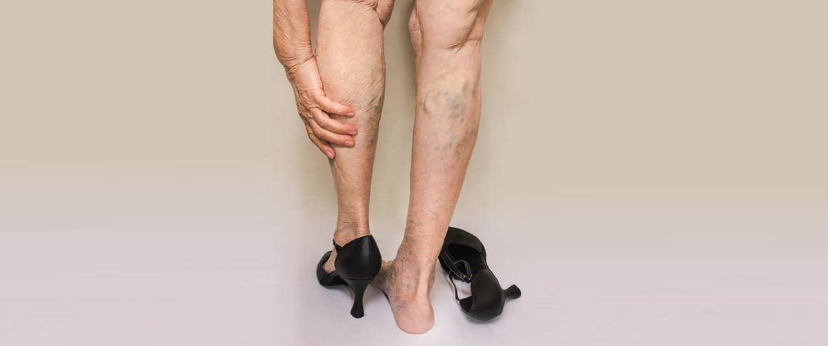get-to-know-whats-triggering-varicose-veins
