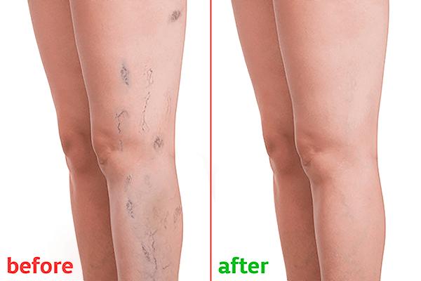 varicose-veins-treatment.png