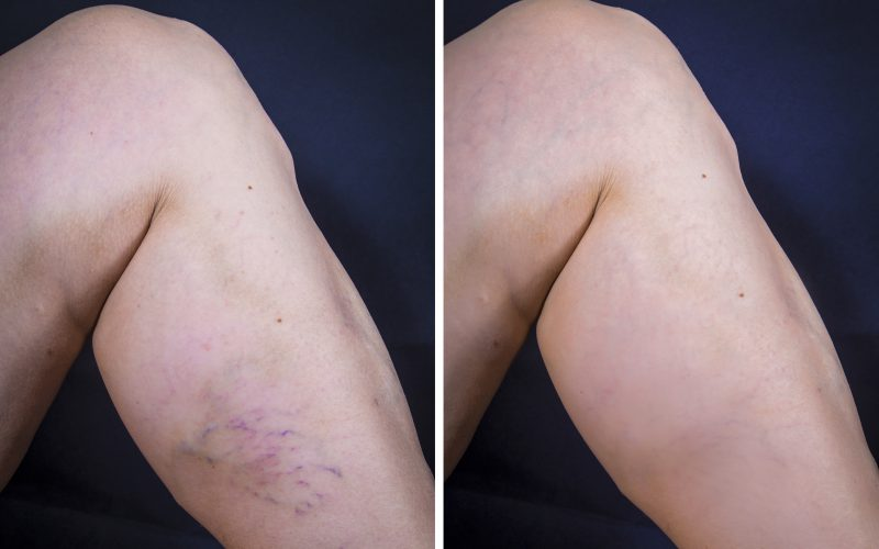 Can Varicose Veins affected legs be brought back to normal?