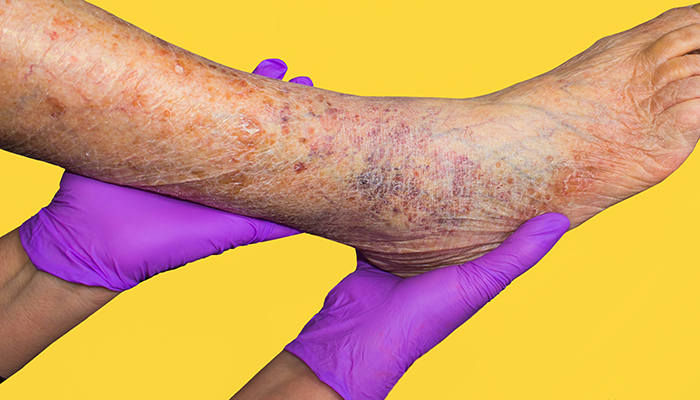 What are the complications of varicose veins?