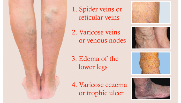 What are The Stages of Varicose Veins Disease?
