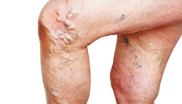 is varicose veins a serious disease