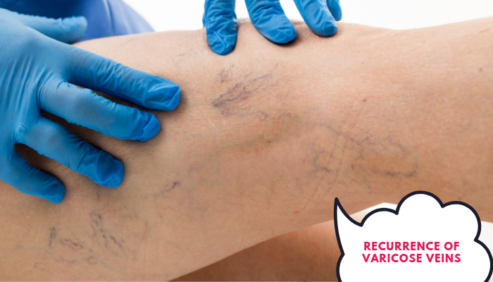 Does varicose veins recur after treatment? If yes,….