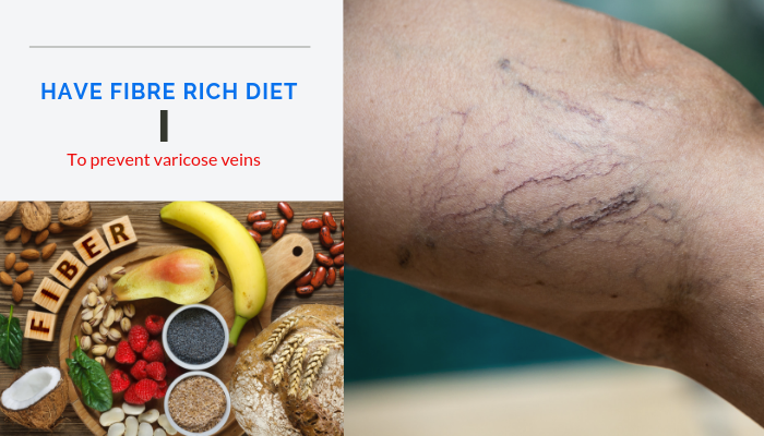 Fibre rich diet - Varicose veins