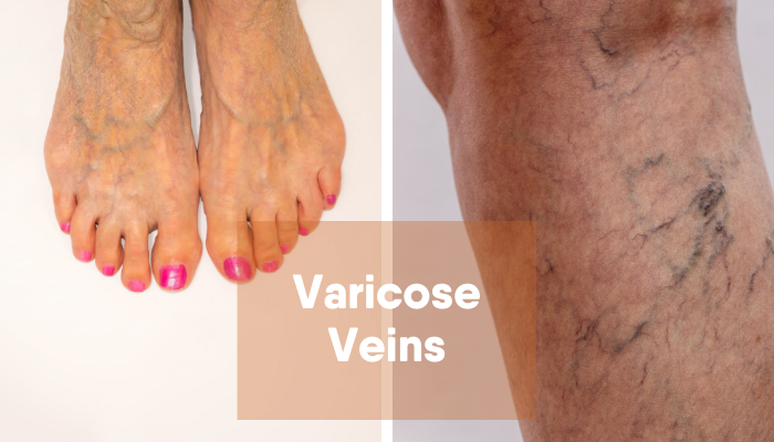 Is there any treatment options for varicose veins without surgery?