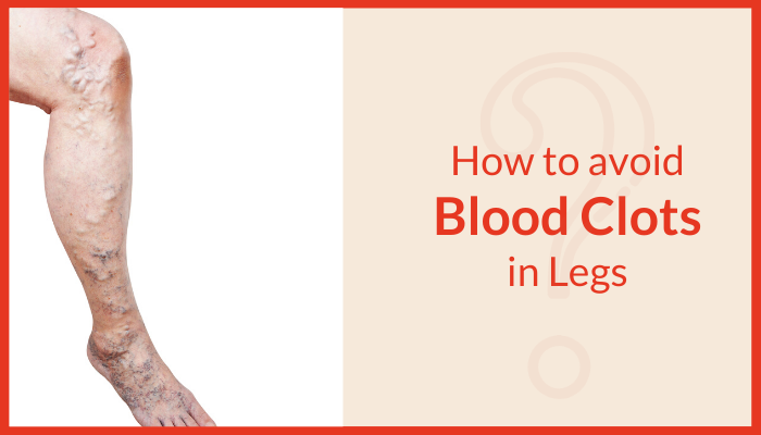 How can we avoid blood clots in our legs?
