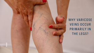Why varicose veins occur primarily in legs