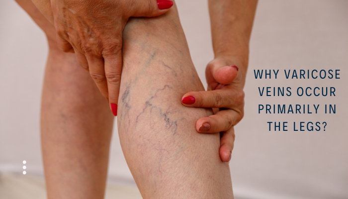 Reasons for varicose veins occur primarily in legs?