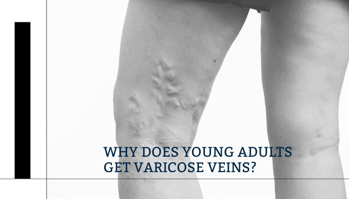 Why does young adults get varicose veins?