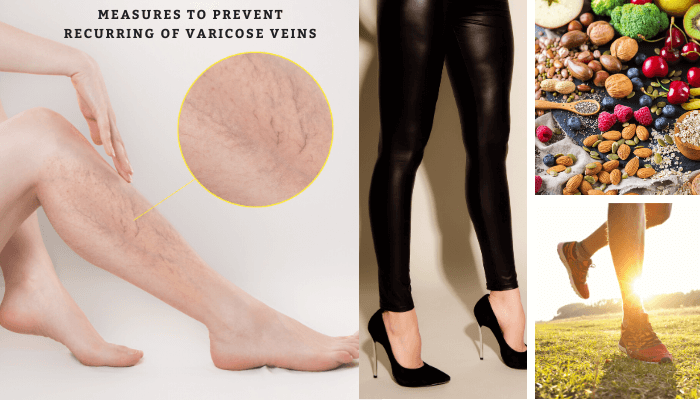 Preventive measures after varicose veins treatment