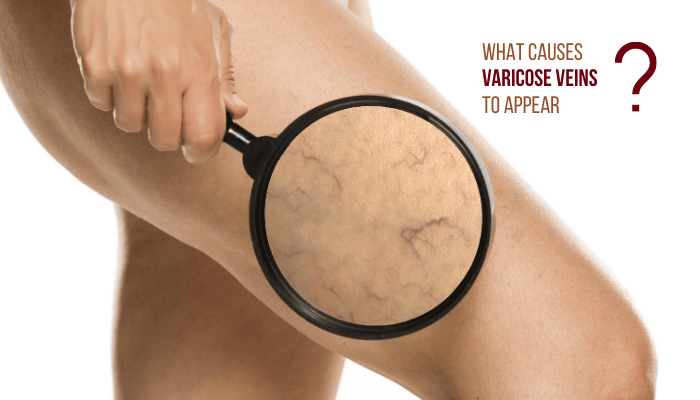 What Causes Varicose Veins To Appear?