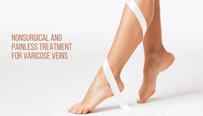 Nonsurgical and Painless Treatment for Varicose Veins
