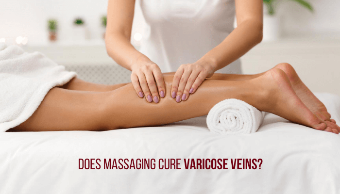Massaging legs - varicose veins