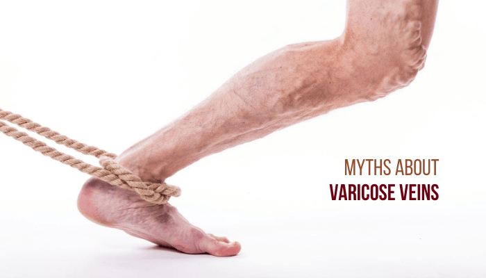 10 Myths about Varicose Veins that you should not believe