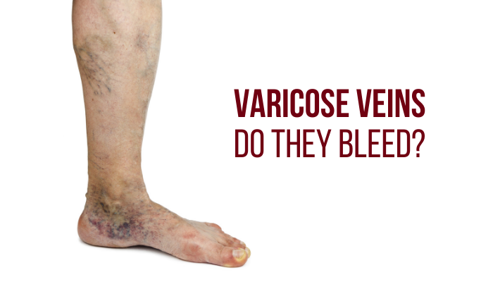 Varicose Veins: Do They Bleed?
