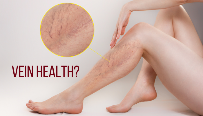 When to pay more attention to Vein Health?