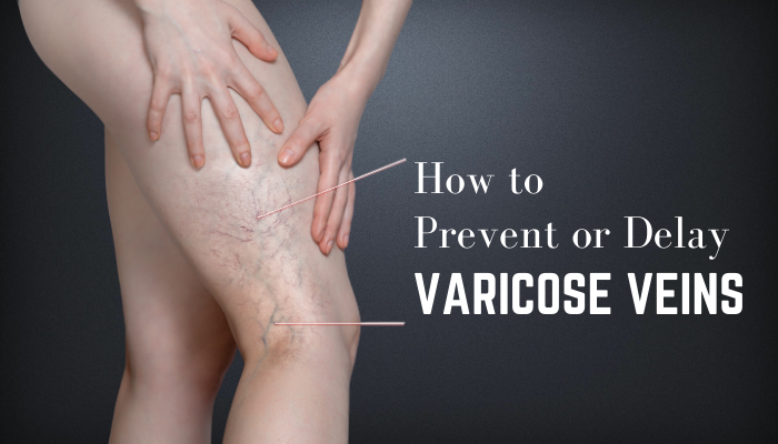 Ways to Prevent or Delay Varicose Veins From Forming or Getting Worse