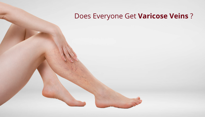 everyone get varicose veins