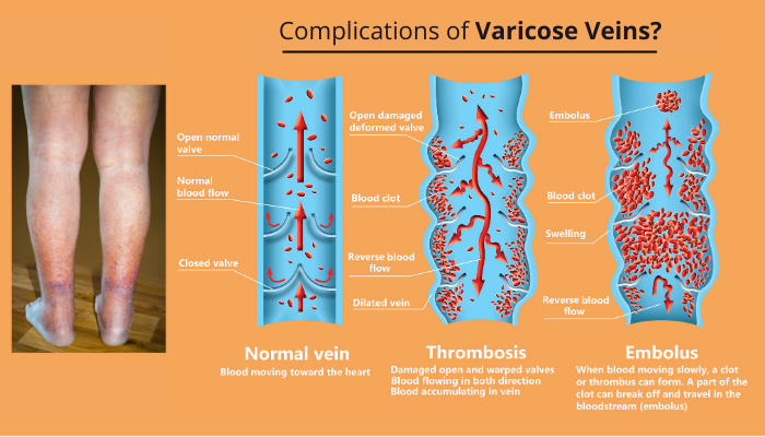 complicatios of varicose veins