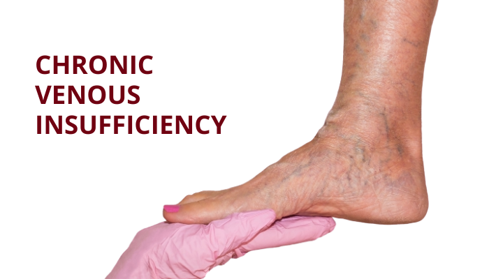 venous insufficiency