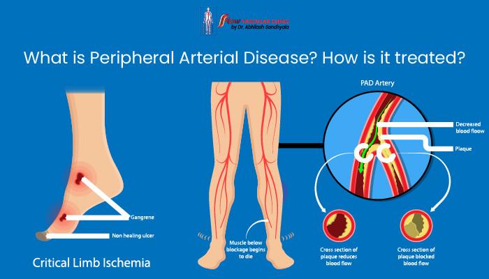 Peripheral-Arterial-Disease